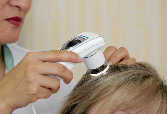 Лечение начинается с проведения трихограммы волос