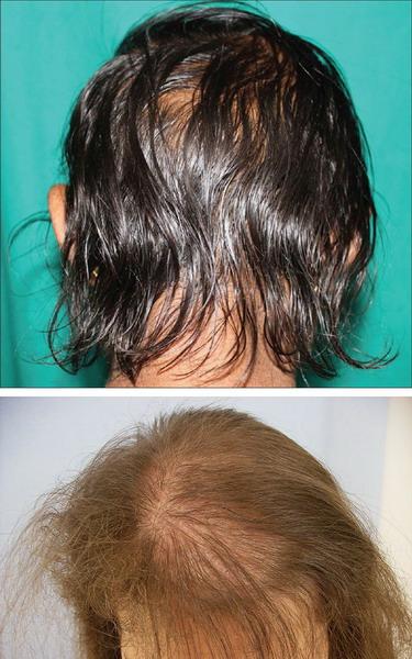 Мужчины реже обращают внимание на поредение волос на голове