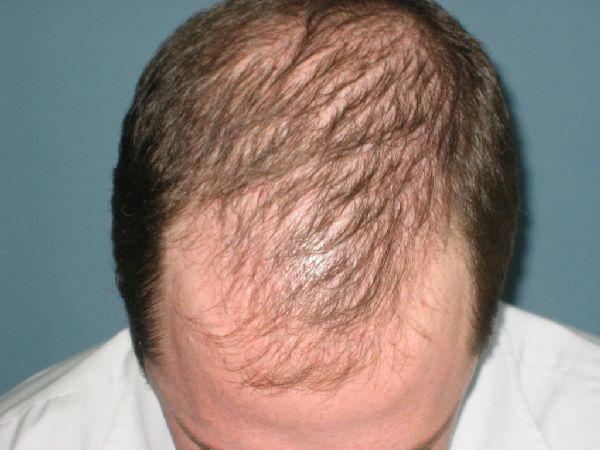 Пример диффузного выпадения волос у мужчины