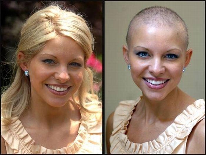 Алопеция при химиотерапии причины как бороться