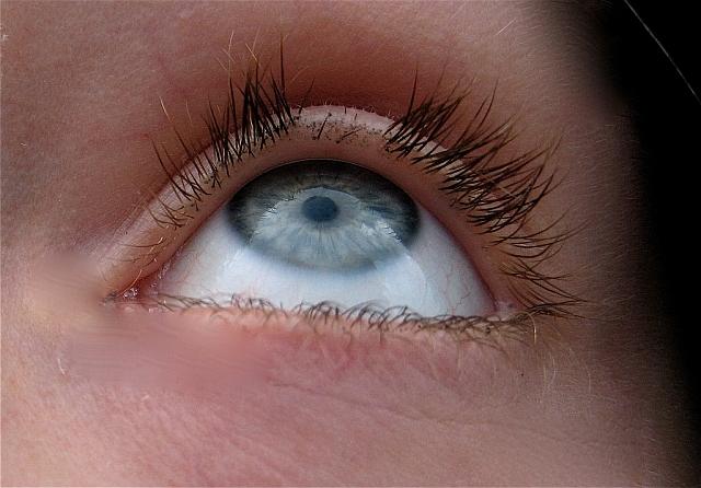 Офтальмологические заболевания требуют немедленного лечения