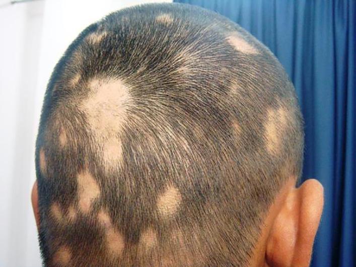 Как лечить алопецию у мужчин и женщин