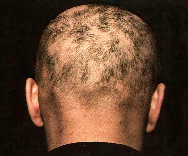 Выпадение волос при сифилисе