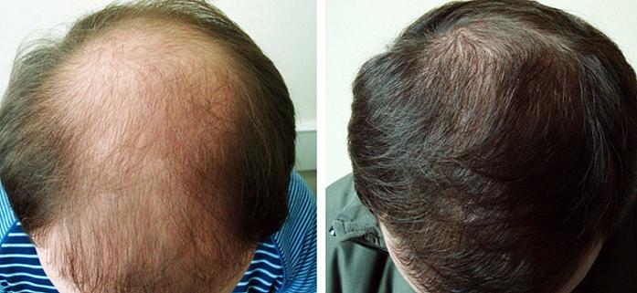 Плазмолифтинг отлично помогает против выпадения волос у мужчин