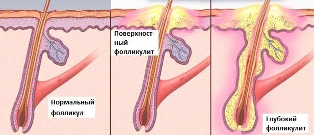 Развитие гнойной инфекции