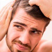 Облысению подвержены более 70 процентов мужчин
