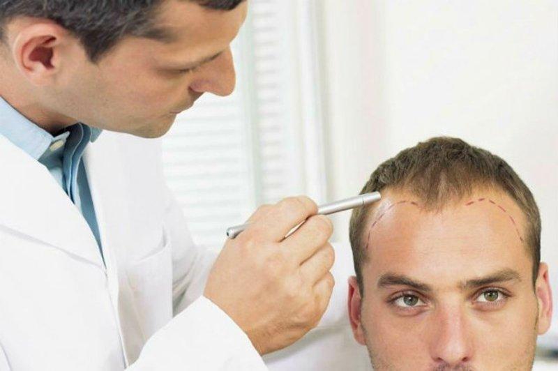 Лечение облысения требует обязательной диагностики