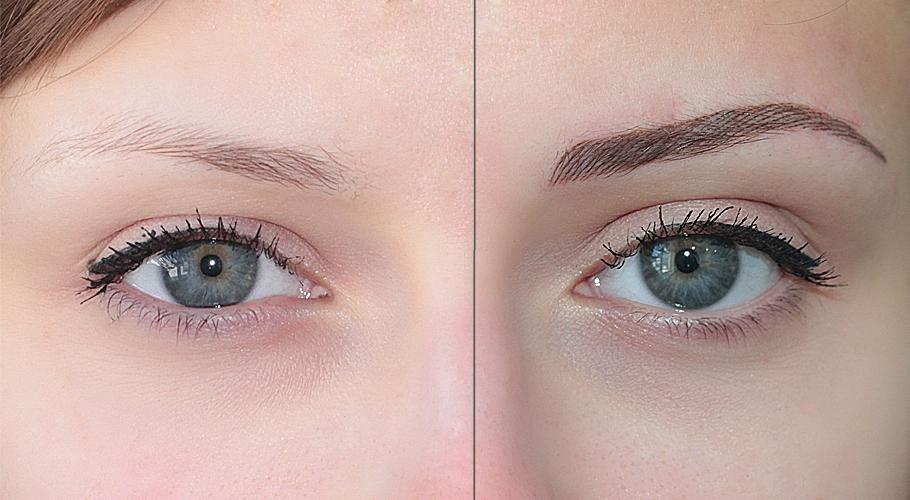Эффект «до» и «после» процедуры: красота требует небольших жертв