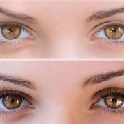 Как выглядят глаза до и после процедуры
