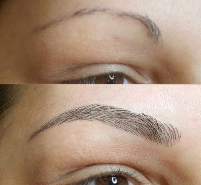 Результат процедуры – красивые брови