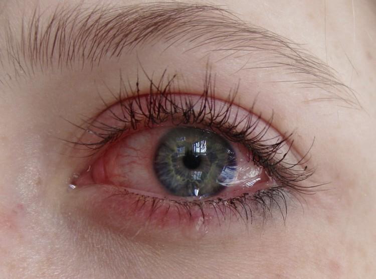 Вот так могут выглядеть глаза из-за клея