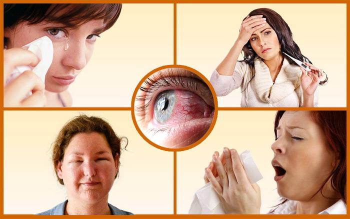 Разные проявления аллергической реакции