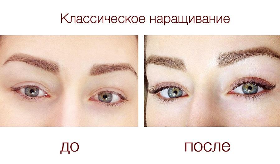 Взгляд до и после наращивания