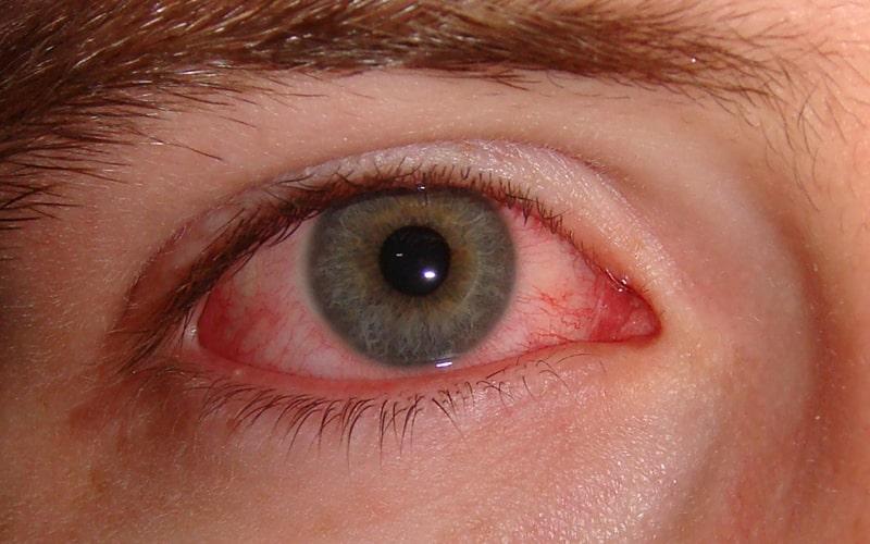 Красота глаз требует внимания – иногда они могут стать красными после процедуры