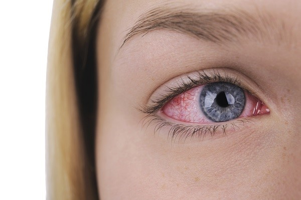 Последствия попадания в глаз клея