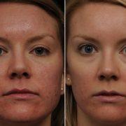 Регулярное применение цинковой мази от морщин помогает быстрее вылечить акне и избавиться от пятен на лице