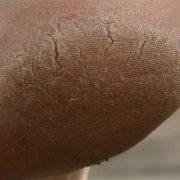 Грубая кожа на ступнях причиняет неудобства и выглядит неэстетично