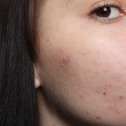 Проблемная кожа лица развивается по ряду причин