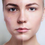 Результат чистки лица