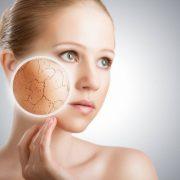 Сухая кожа лица – серьёзная проблема для женщины