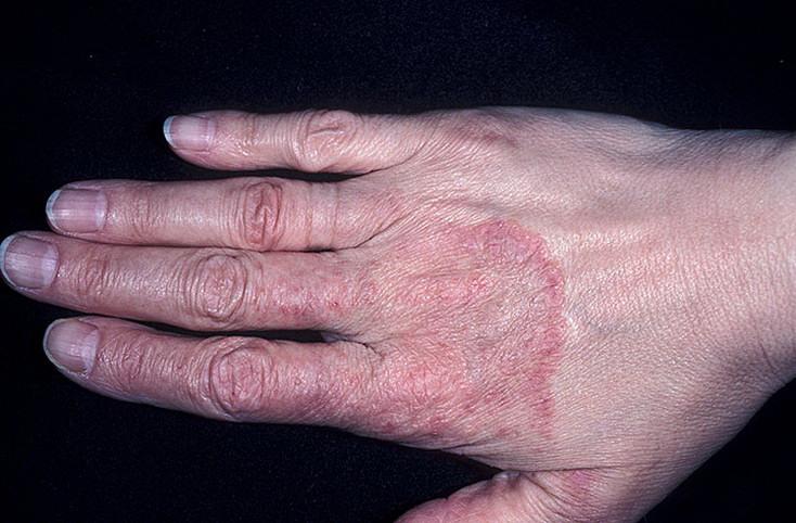 Грибок на руках: чем и как лечить микоз кожи рук, симптомы грибкового поражения