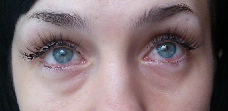 Аллергия на материал или клей