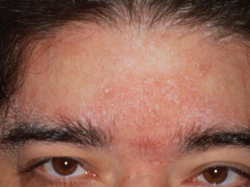 Себорея кожи