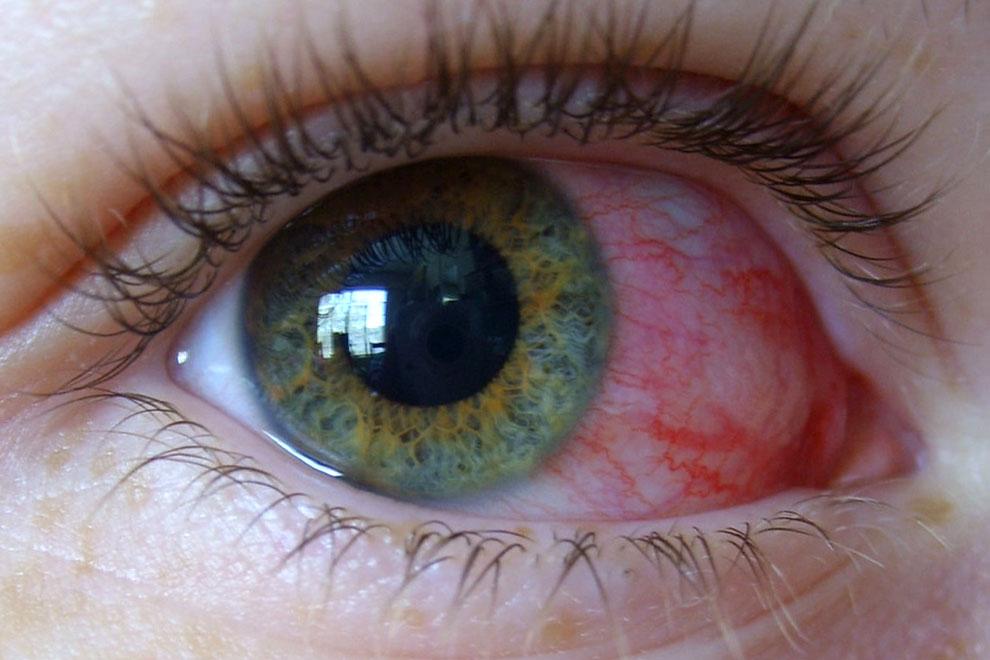 Проведение лечения покраснения глаз начинается с избавления от искусственных ресниц