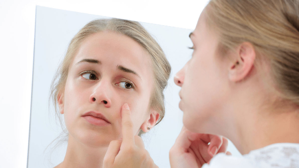 Чистка лица у подростка