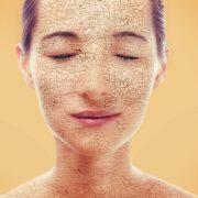 Сухая кожа доставляет серьезный дискомфорт