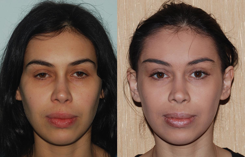 Лифтинг бровей – востребованная на косметологическом рынке процедура