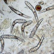 Возбудитель патологии невидимый, его можно обнаружить только под микроскопом
