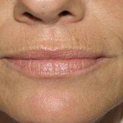 Кисетные морщины на верхней губе