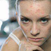 Проблемная кожа с угрями