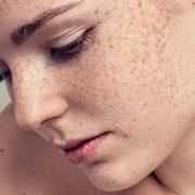 Пигментные пятна на лице девушки