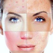 Различные типы кожи требуют особого ухода