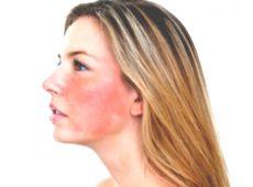 Так выглядит гиперемия кожи