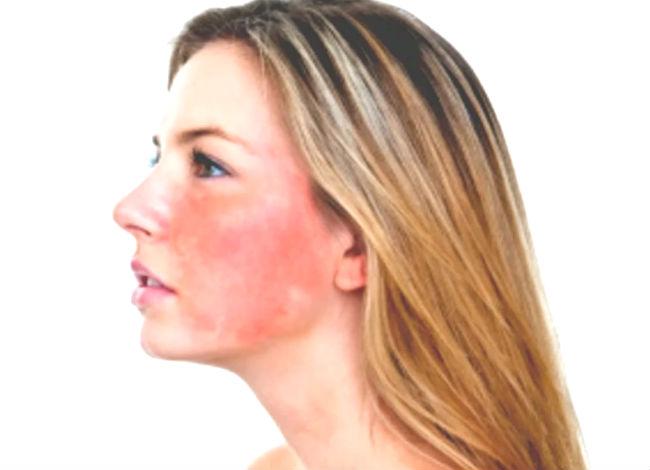 Почему краснеет лицо у женщин и мужчин: каковы причины и что делать