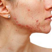 Проблемы с кожей значительно портят внешний вид