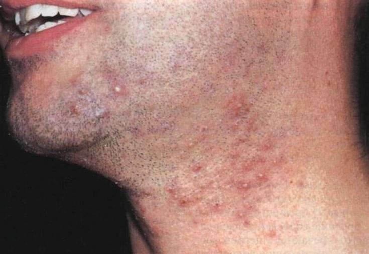 Прыщи после бритья: как избавиться от сыпи