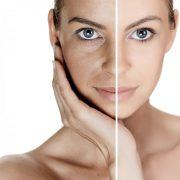 Чтобы предотвратить преждевременное появление морщин, необходимо правильно ухаживать за кожей лица