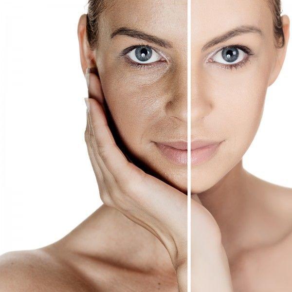 Избавление от морщин на лице в домашних условиях