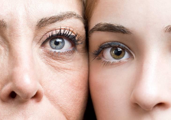 Фотостарение наступает гораздо раньше биологического и проявляется в преждевременном появлении морщин