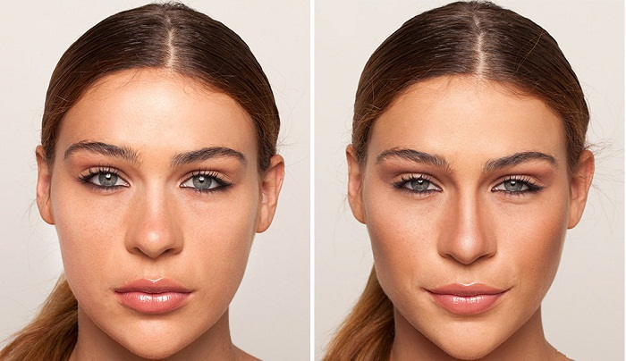 Корректировка широкого носа
