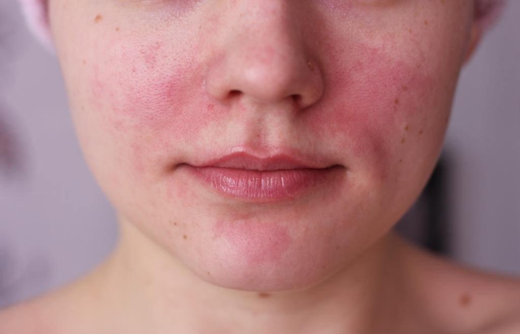 Нездоровые покраснения на лице нередко сопровождаются зудом