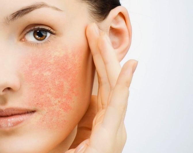 Сухость кожи – причина воспаления и раздражения