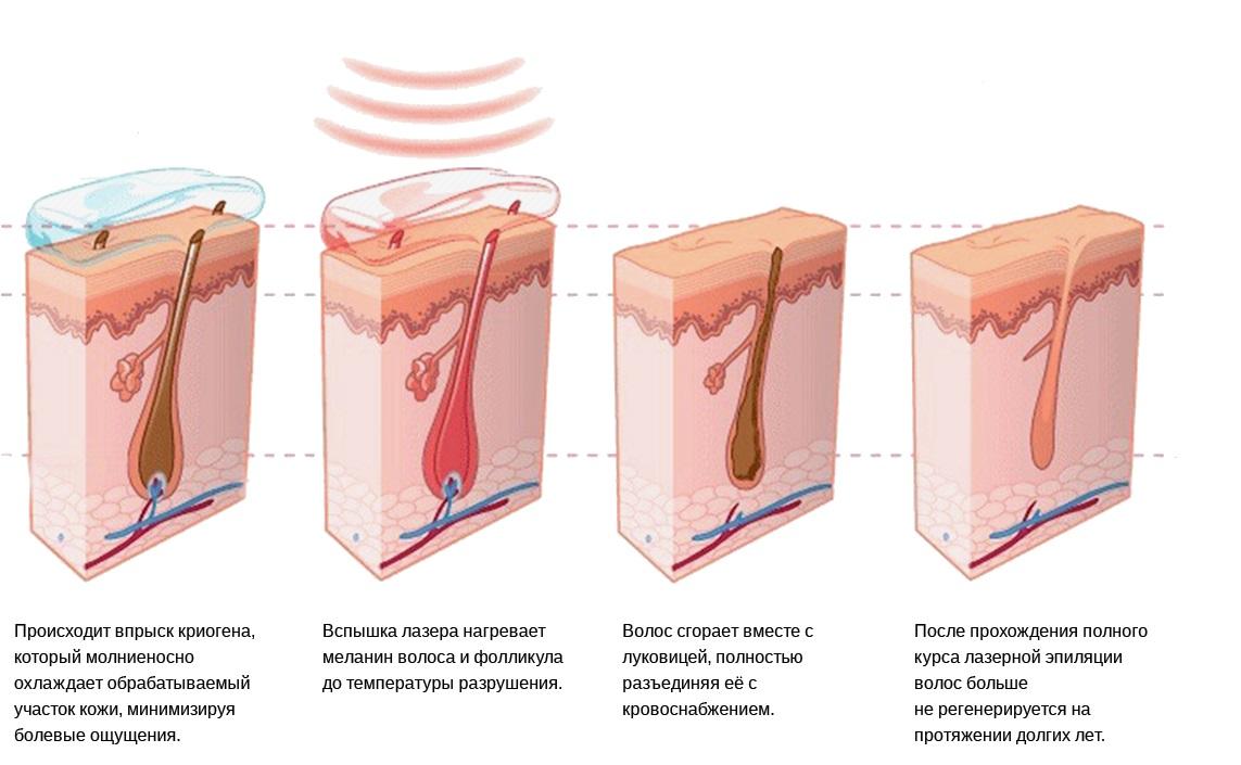 Воздействие лазерной установки на волос