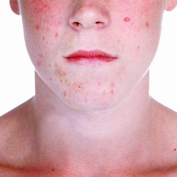 Покраснение после бритья может быть вызвано аллергическими реакциями