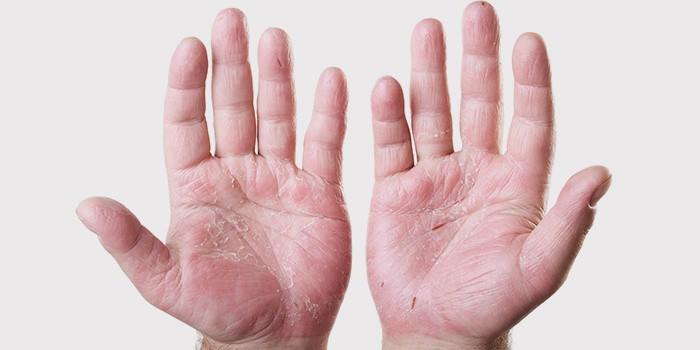 Витаминные комплексы помогут оздоровлению кожи