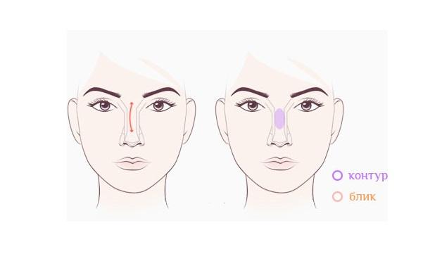 Исправление носа с горбинкой